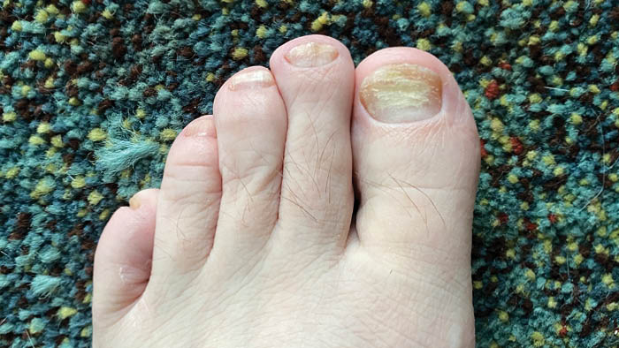 Toenails Growing Out